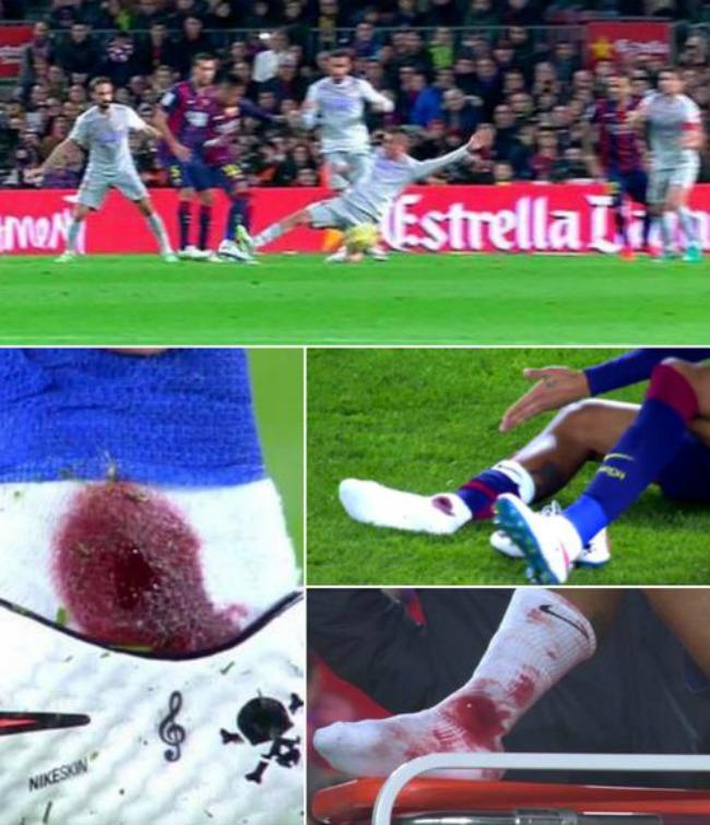 FC Barcelona v Los Intensos - Página 4 Nes